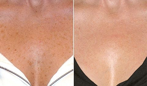 Dermatology & Laser of Alabama has multiple lasers that remove unwanted freckles, age spots and sun damage.