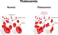 Abnormal red blood cells in thalassemia