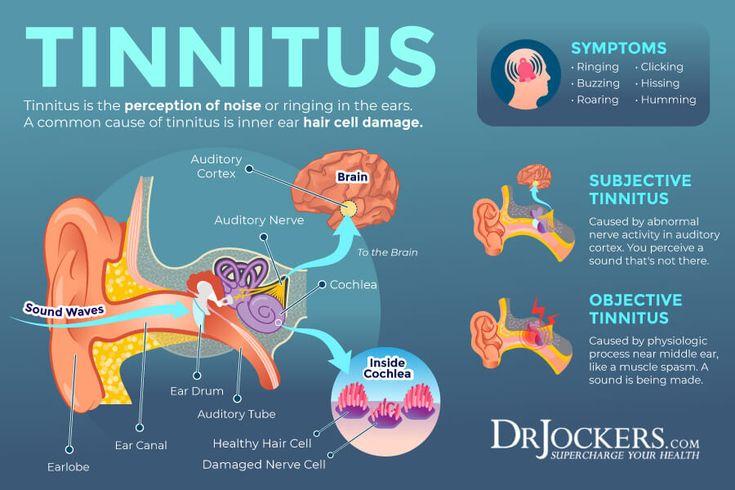 Tinnitus Symptoms Causes And Natural Support Strategies In 2021 Tinnitus Symptoms Treatment For Tinnitus Tinnitus Remedies
