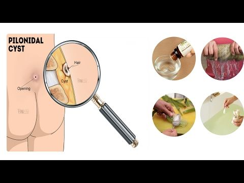 Best Home Remedies for Pilonidal Cysts - YouTube