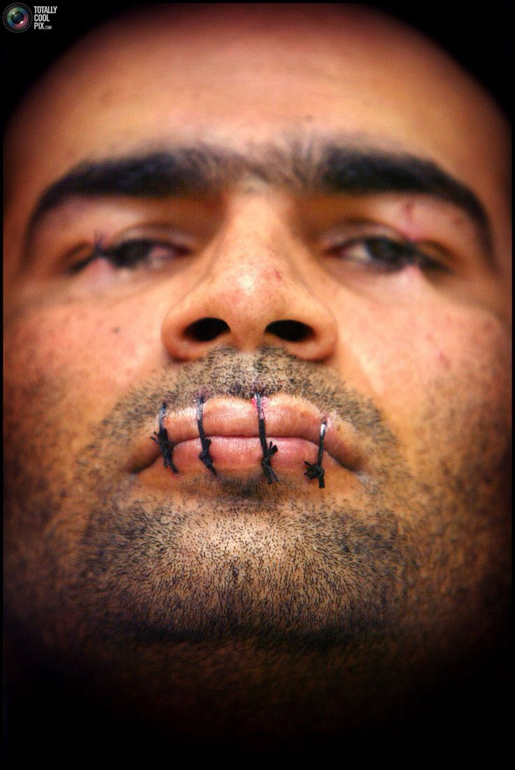 Dutch Iranian immigrant Mehdy Kavousi protests against proposed new asylum laws in Zaandijk, the Netherlands with his lips sewn together in this February 11, 2004 file photo. By Paul Vreeker