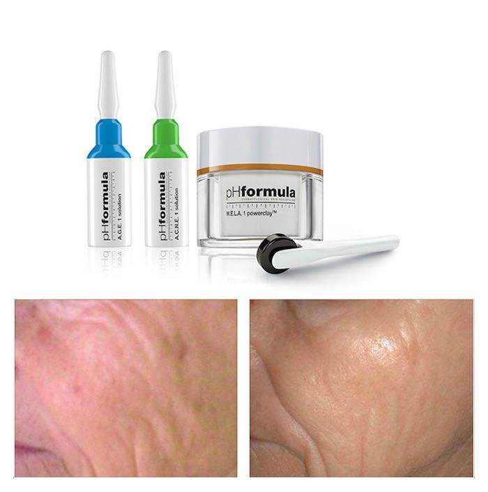 The Mesoresurfacing treatments were designed to create microscopically channels with the M.E.S.O. glow device, which sufficiently stimulates the natural defences to repair and produce collagen and proteins to the treated areas.   #pHformula #skin #mesoresurfacing #antiaging