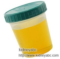 High Levels of Protein in Urine For Lupus Nephritis  http://www.kidneyabc.com/lupus-nephritis-symptoms/2243.html