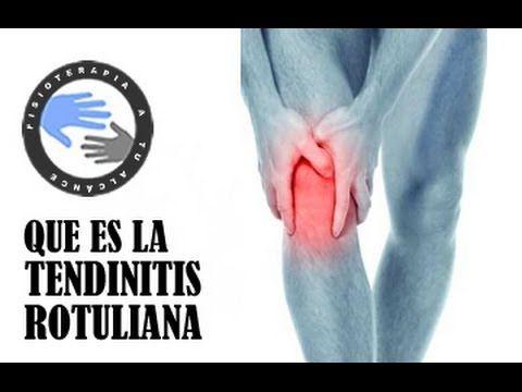 Tendinitis Rotuliana ¿Qué es, Cómo Prevenirla y TRATAMIENTO? | Salud