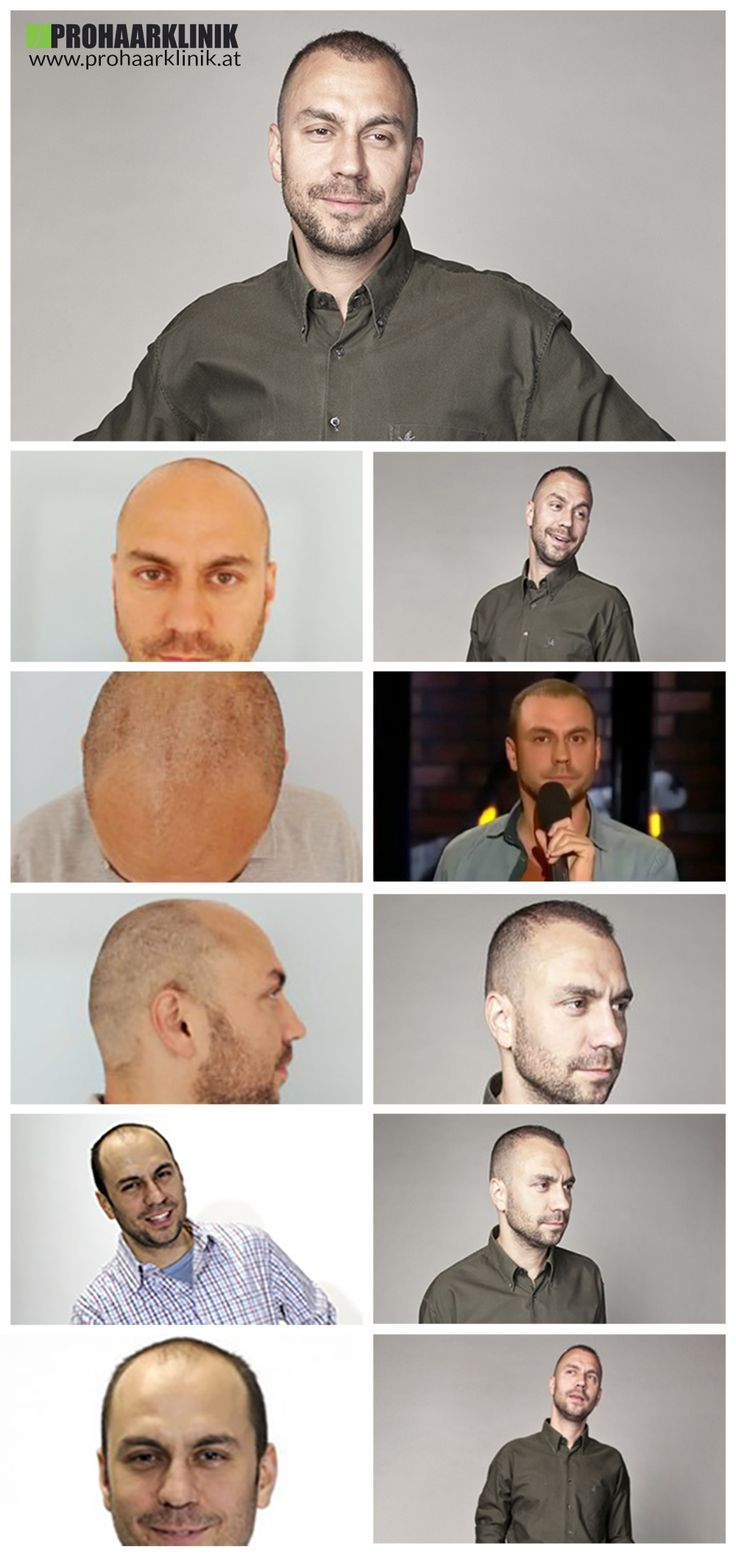 http://www.prohaarklinik.at/haartransplantation-vorher-nachher-bilder/  Ergebnis von 6500 Haare - PROHAARKLINIK  Dieses Bild zeigt die wunderbaren Ergebnisse der 6500+ Haare, die in die Zonen 1-2-3 auf der Oberseite der Kopf eingepflanzt wurden. Ergebnis Fotos 10-13 Monate nach seiner Haartransplantation entnommen. Bei der PROHAARKLINIK durchgeführt.