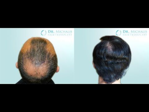 3000 Grafts FUE Hair Transplant Dr. Michalis - Crown: for more information visit our website: http://www.hairtransplant-drmichalis.com/real-cases/