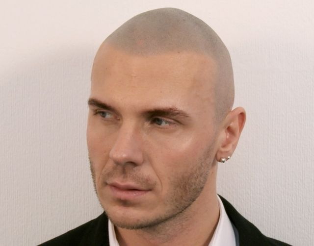 Marcin After Scalp Micropigmentation 2