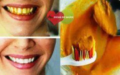 As 7 Dicas Simples Para Branquear os Dentes em Casa