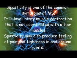 an introduction to the issue of multiple sclerosis Ms is the main cause of non-traumatic neurological invalidity in young  their  introduction into clinical practice will allow early diagnosis of.