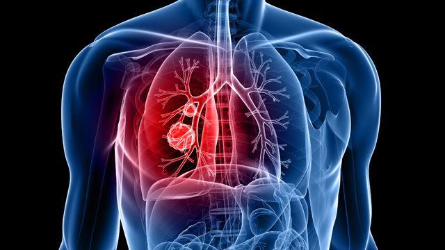 Nach Angaben des Robert Koch-Instituts (RKI) erkranken in Deutschland jedes Jahr weit über 50.000 Menschen an Lungenkrebs. Das Tückische: Die Erkrankung macht sich meist erst spät bemerkbar. Anerkannte Früherkennungsuntersuchungen gibt es nicht. B...