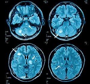 negative 5-htp side effects