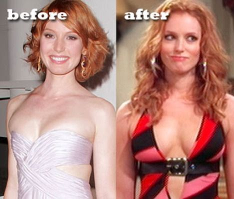 Young Breast Augmentation Before And After Alicia Witt Pla...