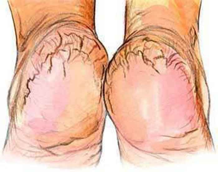 Calcanhar rachado, ocorre por perda de elasticidade da pele provocada por vários factores, como o excesso de peso, por exemplo, e que é agravado nos dias m