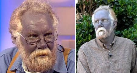 Argyria - a condition caused by the ingestion of silver. It's most dramatic symptom is that the skin becomes blue or bluish-grey. On 2008, ABC reporters interviewed Paul Karason, 40 year-old who's skin turned blue after he used colloidal silver to ease his ailments. It started a decade ago when he saw an ad in a new-age magazine promising health and rejuvenation through colloidal silver. Karason sent away for a kit for making colloidal silver...