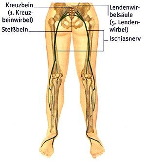 Fibromyalgie - Bei einer Kompression des Ischiasnervs durch den 5. Lendenwirbel oder den 1. Kreuzbeinwirbel entsteht ein starker Schmerz, der von der Verzweigung des Ischiasnervs im unteren Bereich der Wirbelsäule bis zu den Fußsohlen hin ausstrahlen kann.  - © Plaza & Janes, S. A., Barcelona