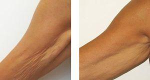 Léto je za rohem a Vás trápí ochablé svalstvo na rukách? Začněte co nejdříve s těmito cviky a do léta budete fit!