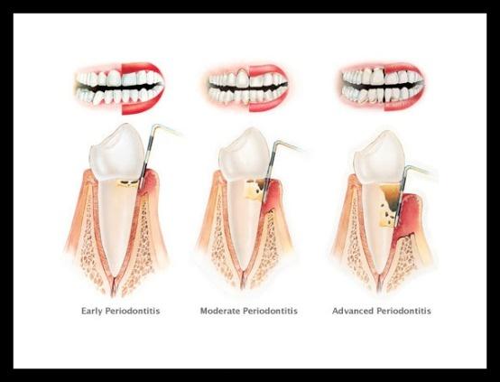 Stages Of Periodontitis Patient Education Pinterest