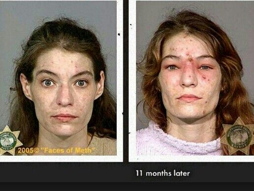 Faces of Meth & What Meth Does: Before & After Pictures ...