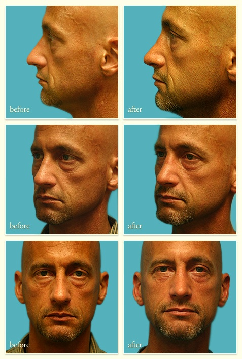 Facial plastic surgery washington