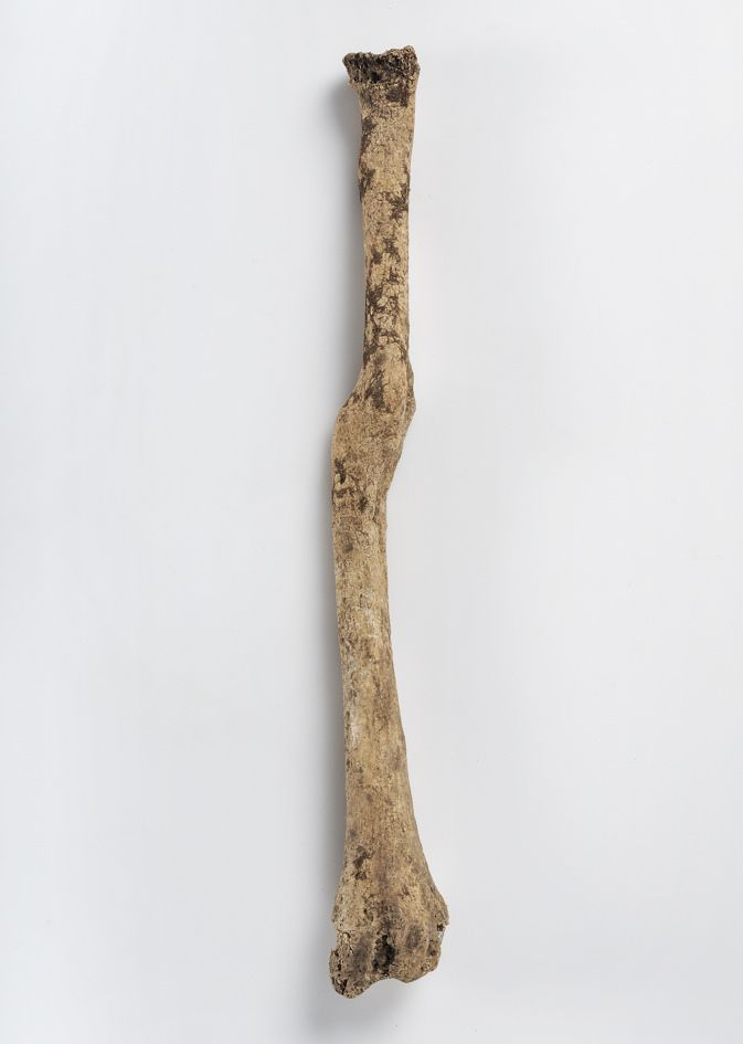 Human bones  of a man  Signs of healed fractures on the radius bone are  marked with arrows in  the showcase. Grave find, Bläsnungs, Väskinde, Gotland, Sweden. SHM 7570