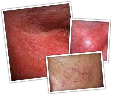 Rosacea is a skin disorder that is marked by facial redness, hard pimples and small spider-like veins.  Treatment includes oral tetracycline antibiotics and certain facial peels.