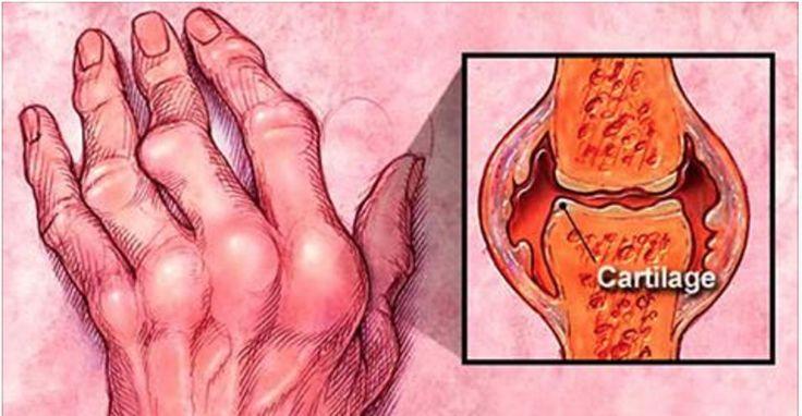 Só quem sofre com artrite sabe como é terrível.A pessoa passa a sentir dores constantes e intensas nas articulações.Isso acontece porque a cartilagem óssea se desgasta.