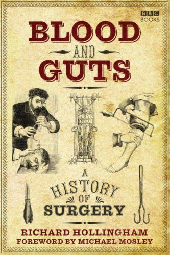 Blood and Guts: A History of Surgery: Amazon.co.uk: by Michael Mosley, Richard Hollingham