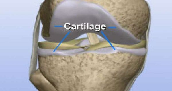 Proper diet is vital in keeping your joints problem free, but it also has a crucial role in revitalizing hip, knee and spine cartilage. Moreover, maintaining optimal weight reducing excessive physical strain every day will keep things on track to keep your knee cartilage healthy. Symptoms of Damaged Knee Cartilage In order for you to […]
