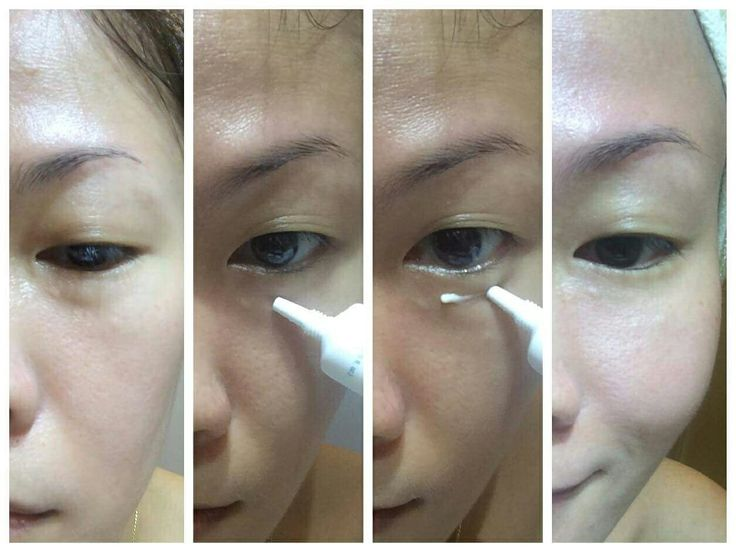 Read this great testimonial 👀 it is alsi her own results she posted 🎉  40 years old 😁  I hardly have eyebags or dark circles or finelines may be because I started to use eyecream at age of 21 when my boyfriend spotted finelines under my eyes. I will have eye bags occasionally when I am not sleeping well or slept too late, the eye bags appears less after I adopted Tru Face idealEyes.  If you think you can use a product like this, drop a comment