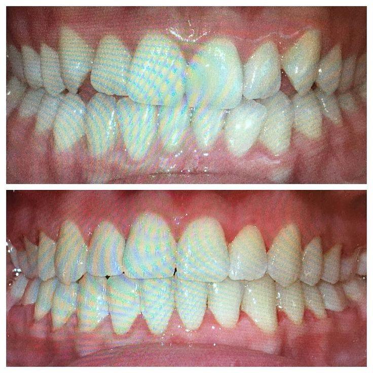 12 months to a more beautiful smile #alisoviejo #alisoviejoorthodontist #braces #bracesoff #beforeandafter #confident #confidence #changinglives #dental #danapoint #dentistry #irvine #lagunabeach #lagunahills #lagunawoods #lagunaniguel #missionviejo #newport #newportbeach #newportcoast #ortodoncia #ortodontia #orthodontics #orthodontist #smile #smiles #smilemakeover #southcoastorthodontics #trasformation #wow @southcoastorthodontics @drmarcpana by drmarcpana Our General Dentistry Page…