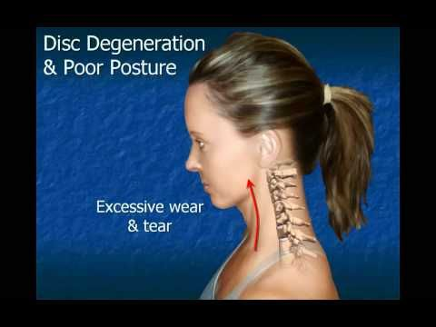 Cervical Disc Degeneration   surprising information on Disc Degeneration and Poor posture. Get this information BEFORE you are in pain.  I wish I had known earlier.