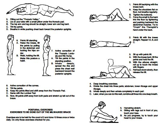 Scoliosis Exercise Diagrams Electrical Wiring Diagram
