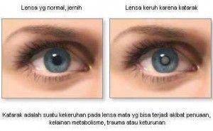 Katarak adalah kekeruhan pada lensa mata yang menyebabkan gangguan penglihatan. Sedikit kami berikan info askep, operasi, obat dan penyebab katarak