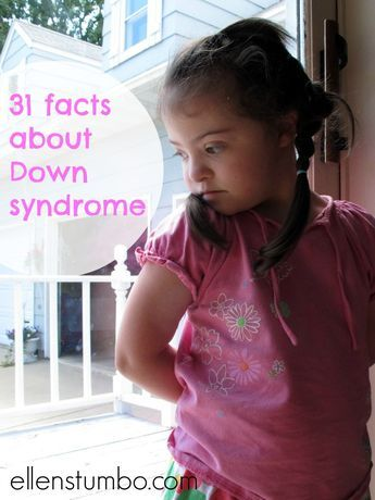 31 Facts About Down syndrome #downsyndrome http://www.ellenstumbo.com/31-facts-about-down-syndrome/