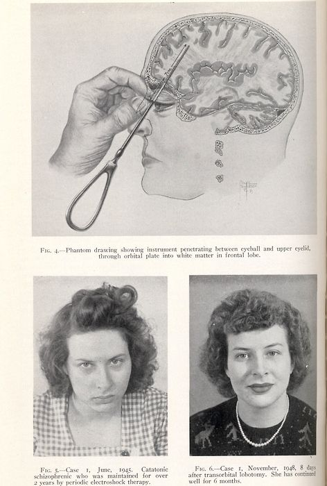Welcome to the lobotomy ladies... Men had the right to demand their wives or daughters be lobotomized against their will.... so that will teach you to be cheerful while you scrub the floors...(Joseph Kennedy, father of JFK, had his daughter lobotomized.)