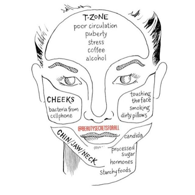 best 25  pimples on forehead ideas on pinterest