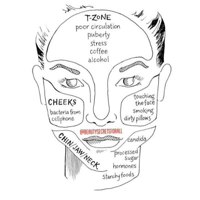 diagram of acne scar