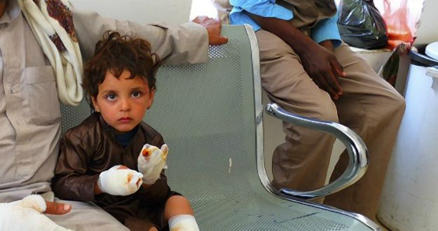 A child sits with their father after being treated for burn injuries in Yemen