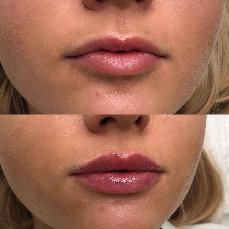 средние века увеличение губ красивые формы фото можно сделать