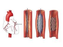 Get Sample at:https://www.marketreportsworld.com/enquiry/request-sample/10373502  This report studies Drug Eluting Stents (DES) in Global market, especially in North America, China, Europe, Southeast Asia, Japan and India, with production, revenue, consumption, import and export in these regions, from 2012 to 2016, and forecast to 2022.