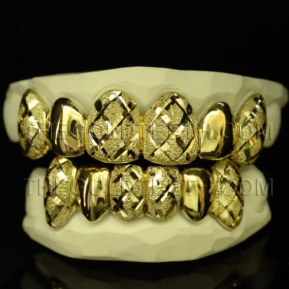 Custom Grillz 10k Gold Teeth Diamond Dust Yellow Gold Grillz Etsy In 2020 Gold Grillz Custom Grillz Gold Teeth