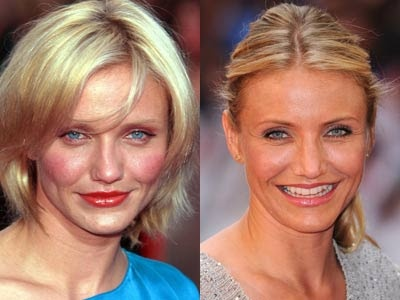 Image detail for -... -pics.blogspot.com: Celebs Before and After nose plastic surgery