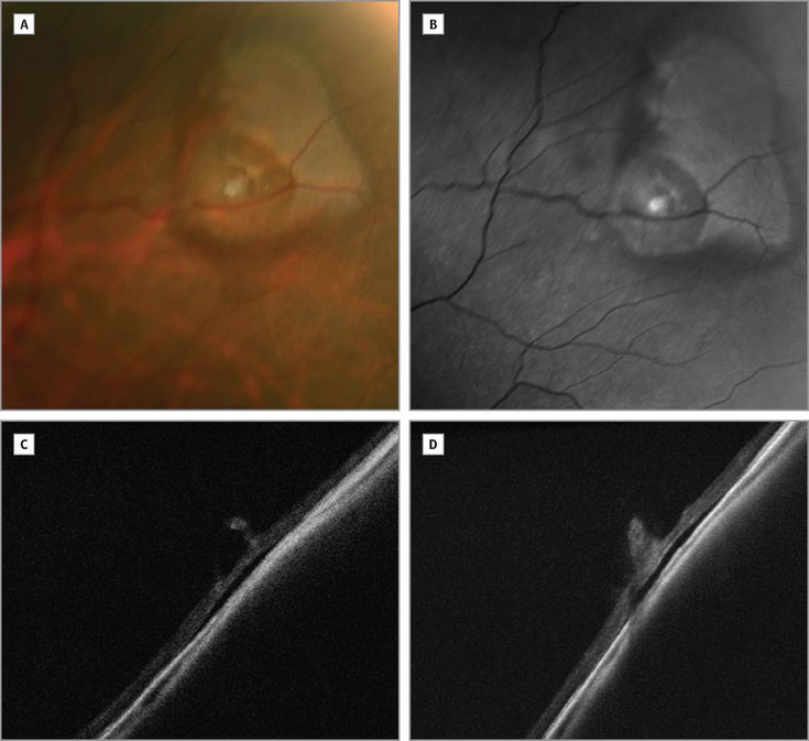 Optical Coherence Tomography of a Cystic Retinal Tuft. JAMA Ophthalmol. 2014;132(10):1191. doi:10.1001/jamaophthalmol.2014.190.