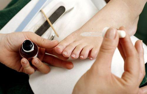 Rimedi naturali per le unghie incarnite - Vivere Più Sani