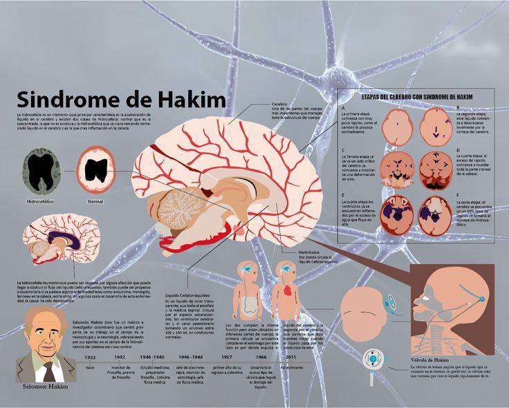 infografía sindrome de hakím