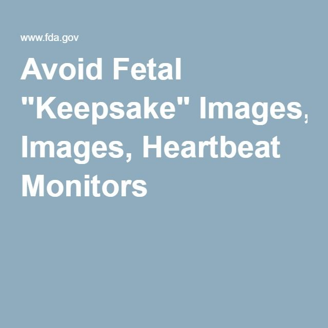 """Avoid Fetal """"Keepsake"""" Images, Heartbeat Monitors. Even the FDA warns that Dopplers and Ultrasounds are dangerous for your baby! Why so many people ignore this fact frustrates me so much!"""