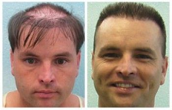 hair transplant hair surgery results from bald to grown hairs.