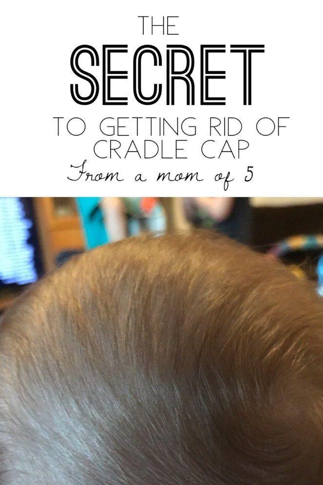 How To Get Rid Of Cradle Cap In Black Babies
