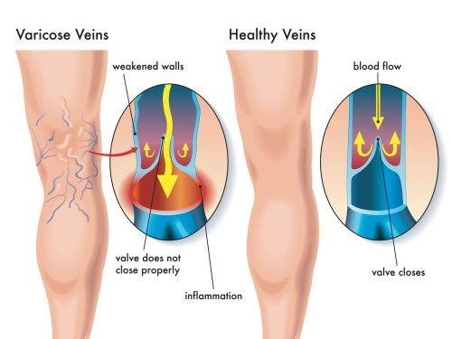 causes of varicose veins