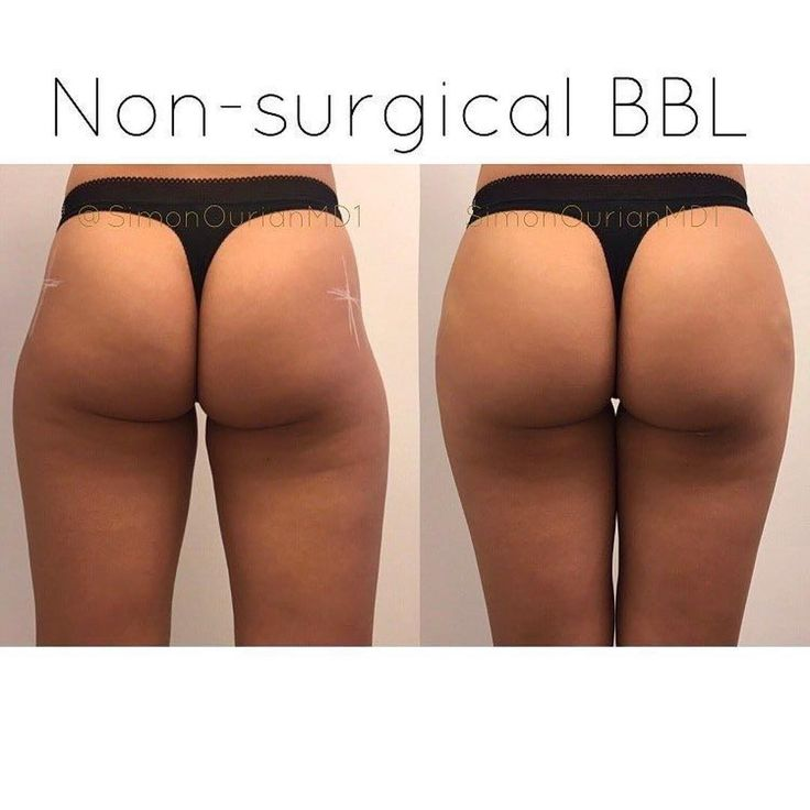 "Exclusively available at Epione Beverly Hills BBL II. No implants. No scalpel butt lift. No general anesthesia. No silicone shots. - This patient looked great to begin with but wanted a more curvaceous behind.  The new advanced techniques for ""Brazilian B"